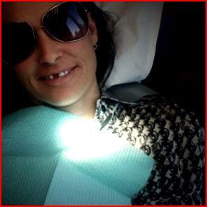 demi-moore-missing-tooth.JPG