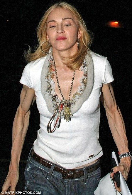 madonna-scary-arms.jpg