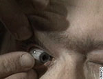 contact lense insert