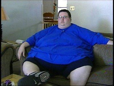fat-surgery-08.jpg
