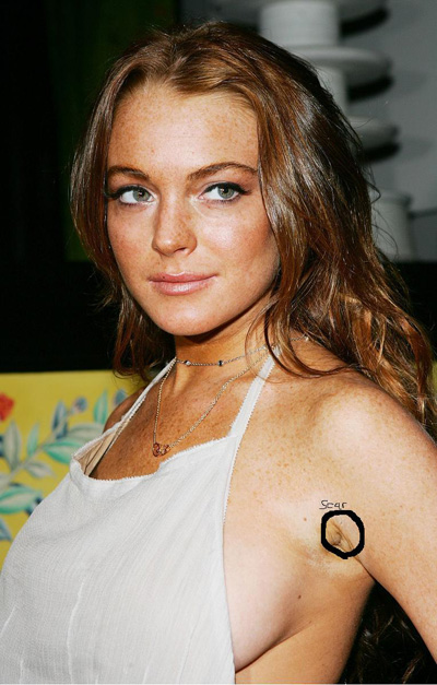 Lindsay Lohan breast implant scar